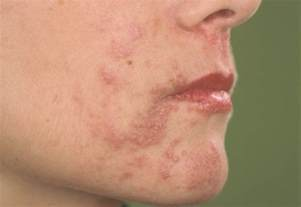 skin rash roseasha picture 13