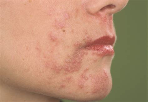 acne and alcohol picture 7
