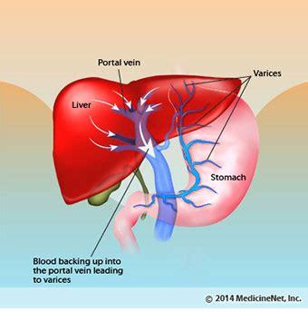 advanced portal cirrhosis liver picture 18