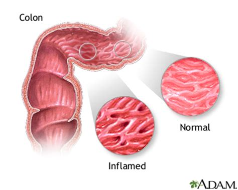 inflammatory bowel syndrome picture 13