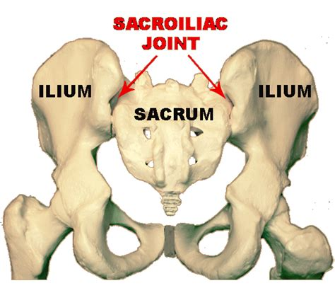 s.i. joint dysfunction. picture 2