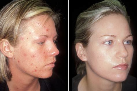 erythromycin work for acne picture 7