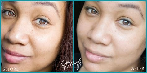 antiaging before after picture 18