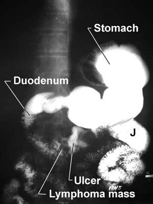 gastrointestinal blockage picture 7