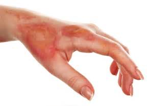 burning skin pain picture 3