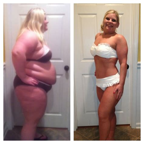 abstracts of weight gain after gastric bypass picture 7