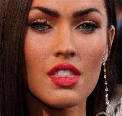 australian dream acne picture 1