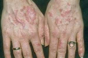 lupus and acne skin problems picture 11