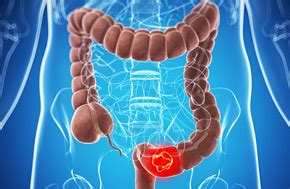 what are signs of colon cancer picture 11