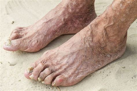 can candida cause toenail fungus picture 18