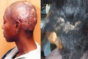 bad relaxers for black hair picture 7