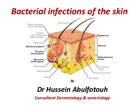 what tupe of bacterial infection would cause back picture 4