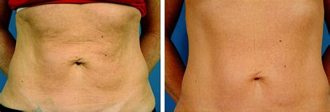 non surgical procedure to tighten skin on legs picture 1
