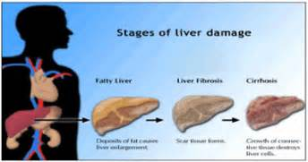 complications of cirrhosis of the liver picture 13