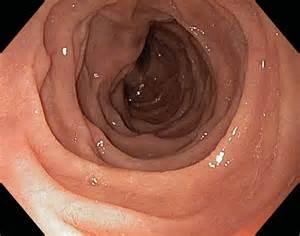 duodenum stomach colon picture 19