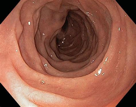 duodenum stomach colon picture 10