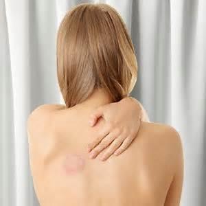 symptom skin fungus picture 1