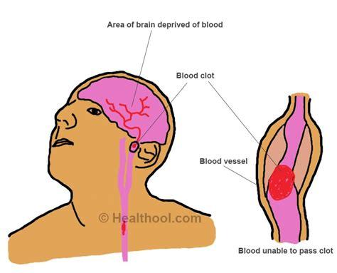 blood clot in head symptoms picture 11