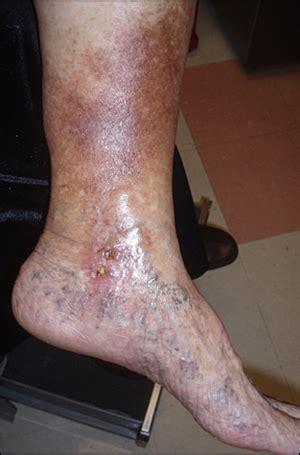 hemosiderin skin discoloration picture 7