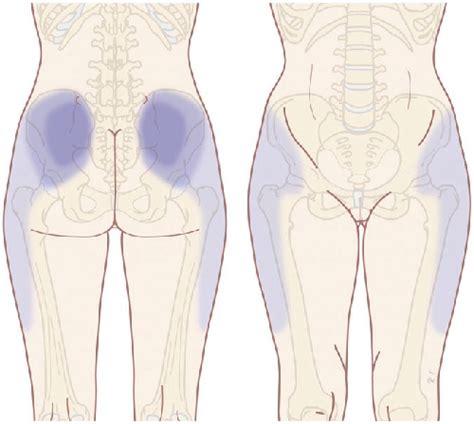 facet joint pain picture 3
