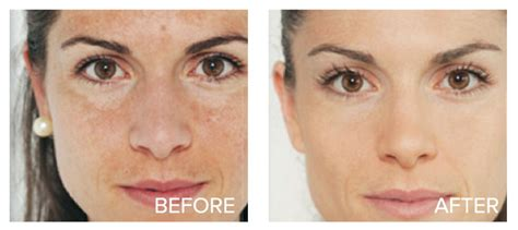 dermablend acne results picture 3