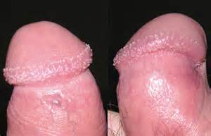 infections of the penis picture 7