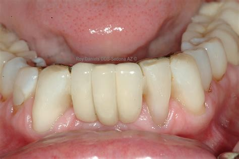 cost of a bridge teeth picture 5