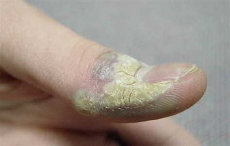 warts on the body picture 1