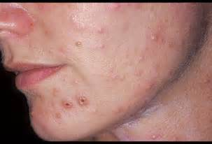 herpes hide with no symtoms picture 15