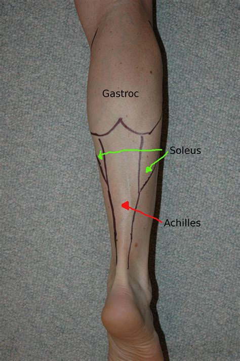 calf muscle lump picture 1