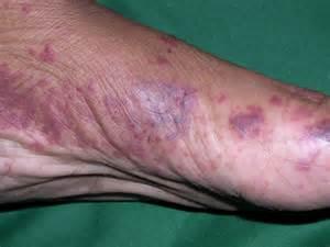 skin reactions purple blotches picture 3
