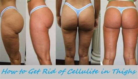 what homemade remdey gets rid of cellulite picture 14