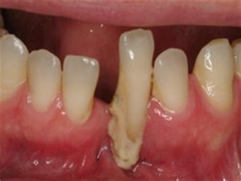 wisdom tooth extraction picture 7