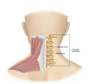 cervical muscle spasms picture 5