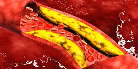 Cholesterol veins picture 15
