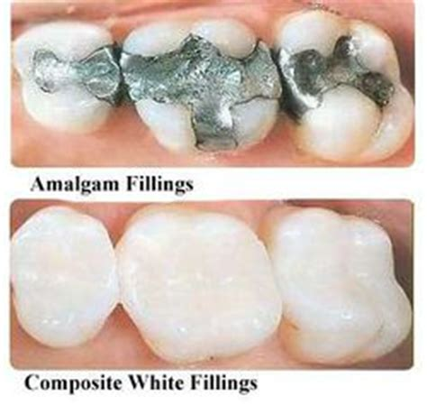 fluoride treatment for teeth picture 11