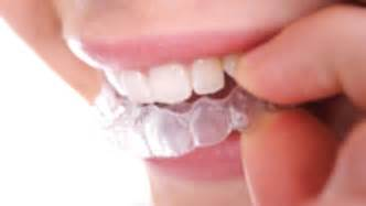 tooth whitening san francisco picture 9