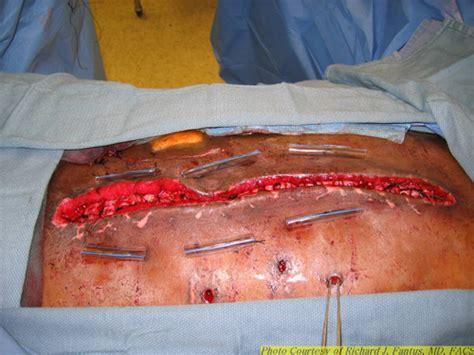irritable bowel urgency picture 13