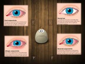foliact-n tablet is for which eye disease to picture 3