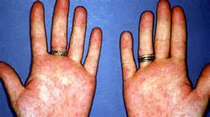 swollen fingers fever and weight loss picture 1