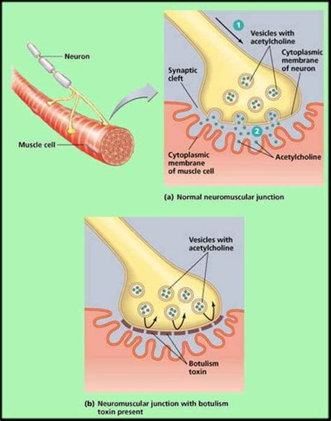 el toxemia symptoms picture 3