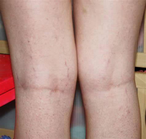 stretch marks up your legs picture 7