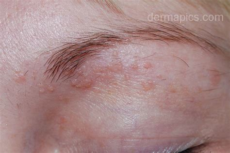 genital wart treatment picture 2