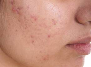 acne or a rash picture 13