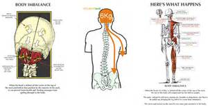 head and neck muscle strain picture 6