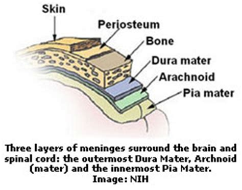 discovery of bacterial meningitis picture 6