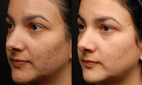 laser resurfacing pictures acne scars picture 11