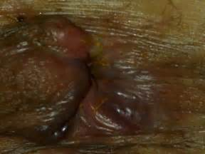 hemorrhoid pictures picture 5