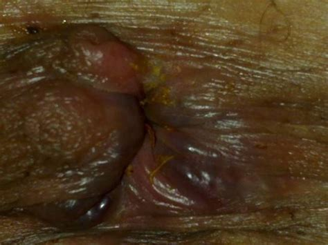 pictures of hemorrhoids picture 2