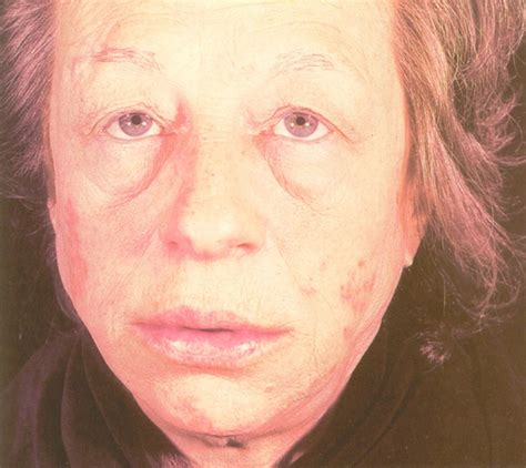 acne better on ndt picture 10